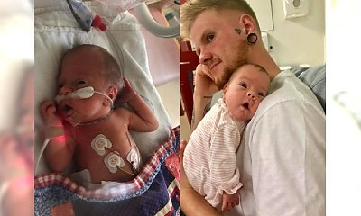 Dziewczynka z rozszczepem kręgosłupa przeszła PIONIERSKĄ operację w łonie matki. Mało brakowało, a urodziłaby się sparaliżowana...