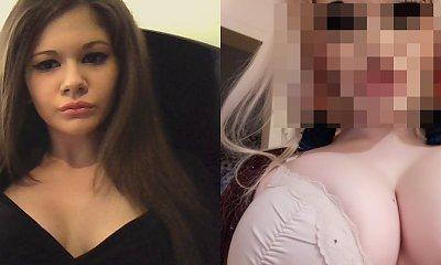 Chciała wyglądać jak lalka Barbie. Ma 22 lata i 15 operacji plastycznych za sobą. Jej twarz to dramat!