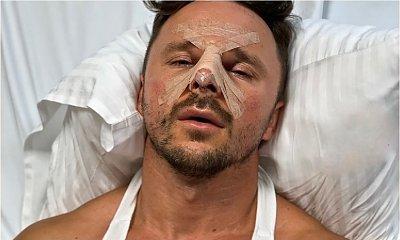 Qczaj zrobił sobie operację plastyczną nosa. Tak teraz wygląda góralski trener