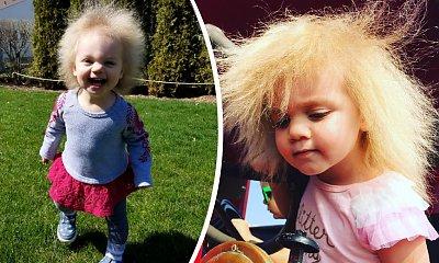 """Dziewczynka z """"fryzurą Einsteina"""" robi furorę w sieci! Taylor McGowan cierpi na zespół włosów niedających się uczesać!"""
