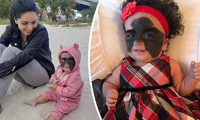 """Przez nietypowe znamię nazwano ją """"dzieckiem w masce Batmana"""". Jak dziś wygląda 2-letnia Luna Fenner?"""