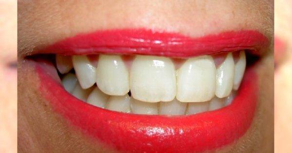 Jak wybielić zęby domowym sposobem?