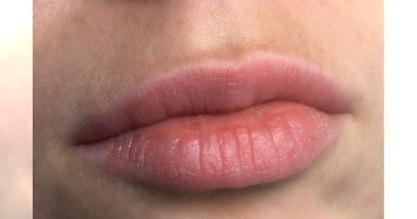 Jak odmłodzić usta?