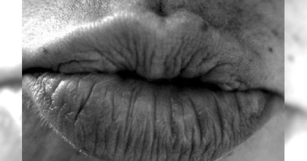 Zdrowe całowanie