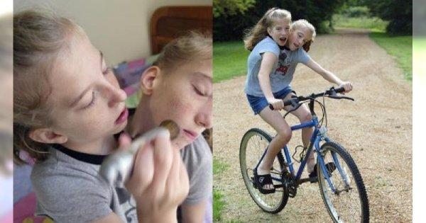 Te siostry mają jedno ciało i dwie głowy! Razem potrafią biegać, jeździć samochodem i na rowerze, a niedawno zostały nauczycielkami!