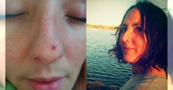 Miłośniczka opalania sądziła, że to tylko niegroźna ranka na skórze. Z powodu raka straciła kawałek nosa...