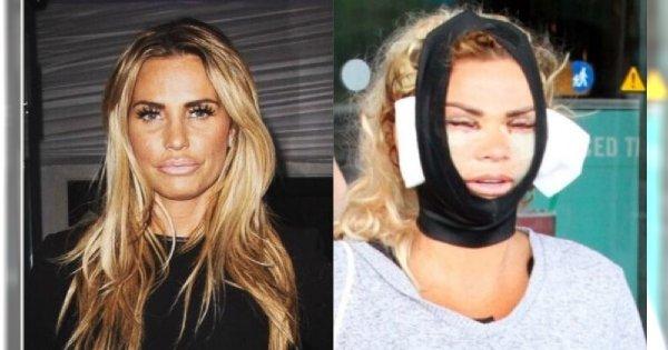 Modelka PRZESADZIŁA z chirurgią plastyczną. Strasznie cierpi i żałuje operacji. Te zdjęcia są szokujące!