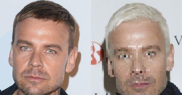 Dawid Woliński przefarbował włosy na SIWO! Ale to nie wszystko. Wygląda jak... OBCY?