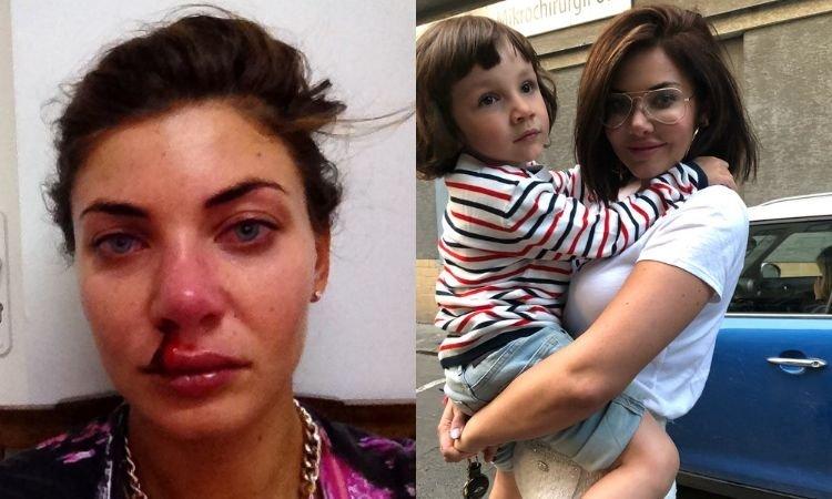 Wodzianka opowiedziała o koszmarze, jaki zgotował jej mąż i zamieściła zdjęcie z rozbitym nosem. Co na to matka? Nazwała ją DEBILKĄ!