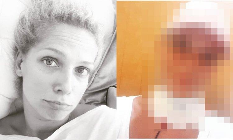 Joanna Liszowska nie może mówić? Pokazała zdjęcie z bandażem na szyi. Co się stało?
