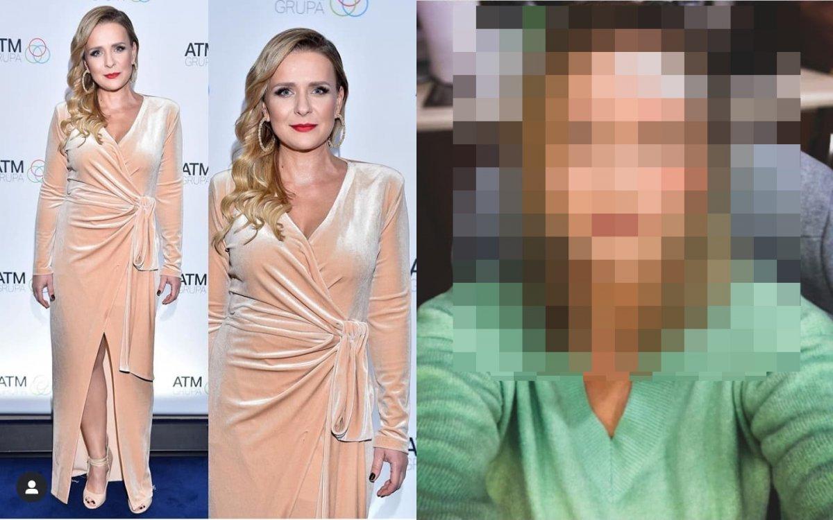 Posiniaczona Aneta Zając opublikowała drastyczne zdjęcia. Co się stało? Jak do tego doszło? Wyznała prawdę!