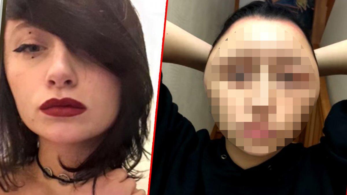 Jej głowa spuchła dwukrotnie po reakcji alergicznej na farbę do włosów. Omal nie straciła życia!