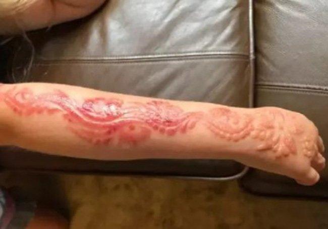 poparzenia po hennie