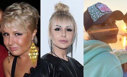 Blanka Lipińska majstrowała przy twarzy? Przypominamy, jak wyglądała przed operacjami plastycznymi [STARE ZDJĘCIA]