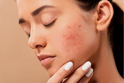 Przeciwtrądzikowa pielęgnacja skóry - edycja jesienna