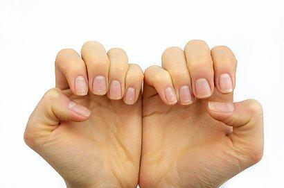 RADZIMY: Masz coś takiego na paznokciach? Natychmiast umów się do lekarza