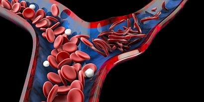 RADZIMY: Ten niedobór jest powszechny! Poznaj 10 oznak anemii