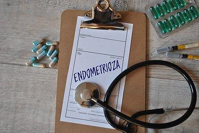 Czy możesz umrzeć na endometriozę? Fakty, które musi znać każda kobieta