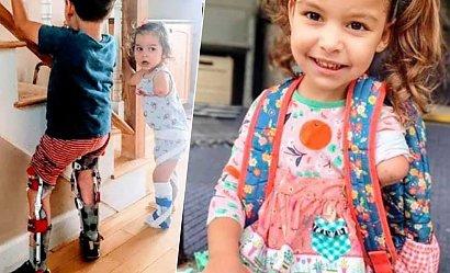 """""""Nazwali moje dziecko paskudnym potworem"""". Bardzo ważny apel mamy niepełnosprawnych dzieci"""