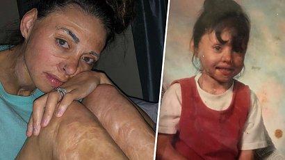 Była szykanowana z powodu blizn po oparzeniu. Ten tatuaż sprawił, że narodziła się na nowo!