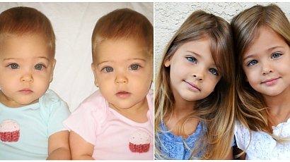 Oto najpiękniejsze bliźniaczki na świecie. Zobaczcie, jak dziś wyglądają!