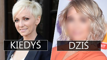 """Anna Wyszkoni pokazuje brzuch na ramówce Polsatu, a fani... jej nie poznają: """"To pani?!"""""""