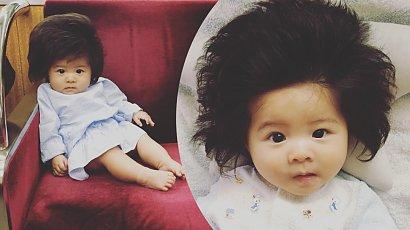 Dziewczynka urodziła się z niewiarygodnie bujną czuprynką! Jak dziś wygląda Baby Chanco?