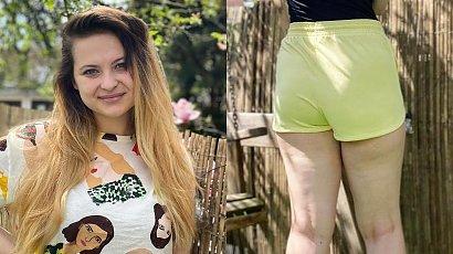 Czy kobieta z cellulitem powinna nosić shorty? Blogerka zabrała głos w tej sprawie