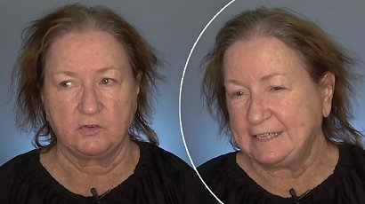 67-latka przez lata nosiła peruki. Metamorfoza jej cienkich włosów jest powalająca