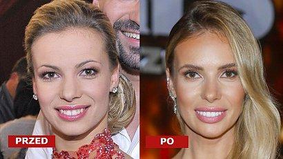 Izabela Janachowska ma nowe zęby! Zrobiła sobie krzywdę? Co za metamorfoza! [ZDJĘCIA PRZED I PO]