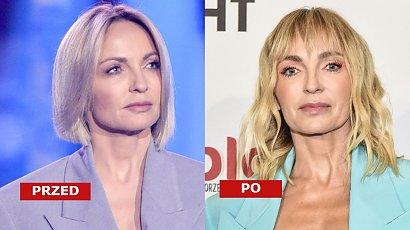 """Anna Wyszkoni i jej nowa twarz na Flesz Fashion Night. """"Czy ona przeszła przeszczep twarzy?"""" - pytają brutalnie internauci"""