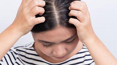 """""""Początek września i ten sam problem! Nie wszyscy rodzice godzą się na kontrolę czystości głów. Wszawica ich nie dotyczy?!"""""""