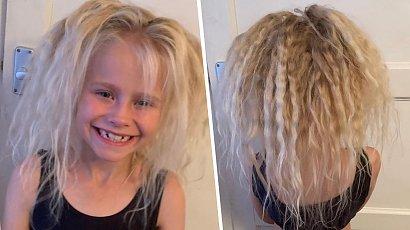 Ta dziewczynka cierpi na zespół włosów niedających się uczesać! Jej fryzura stała się hitem sieci!