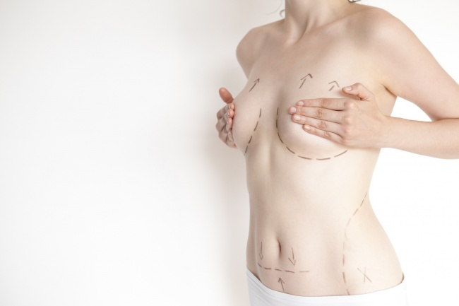 Woman with marks for plastic surgery